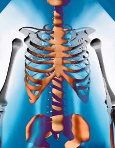 Медикаментозные патологии со стороны костного мозга