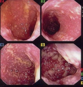 Осложнение медикаментозной терапии со стороны желудочно-кишечного тракта - псевдомембранозный колит