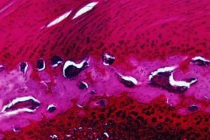 Тромбоцитопении медикаментозной природы